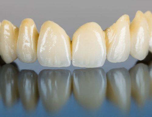 Mit kell tudni a fogászati cirkonról?
